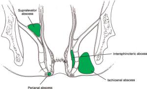 clasificacion de absceso perineal